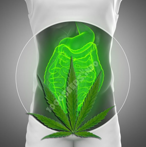 morbus-crohn-und-Cannabis, Cannabis bei Morbus Crohn, Cannabis in der Medizin