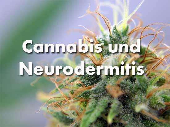 Cannabis-bei-Neurodermitis, medical Marijuana Infos