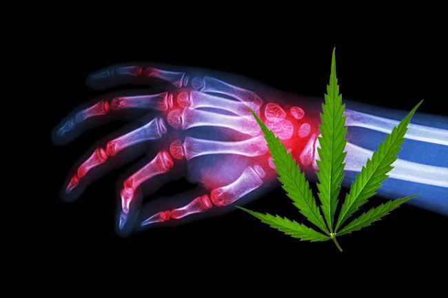 Cannabis-Arthritis
